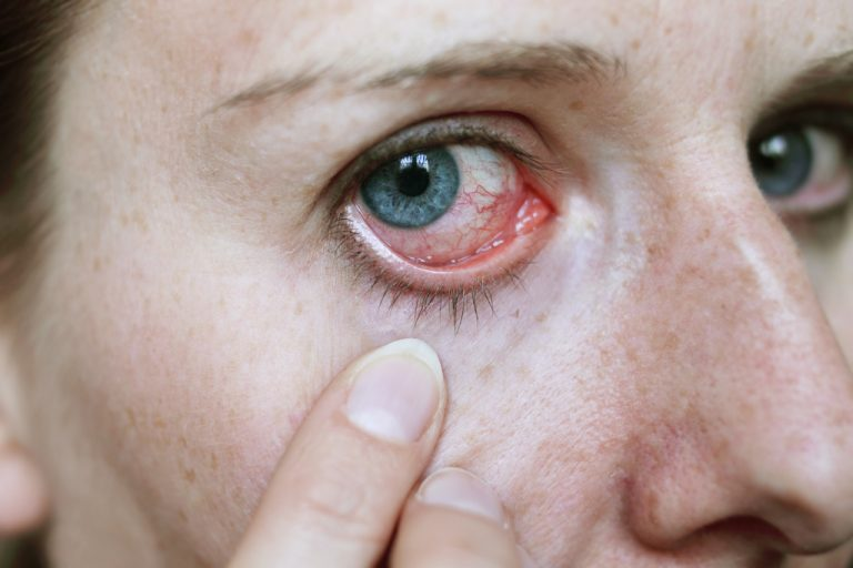 Symptoms Of Eye Infection