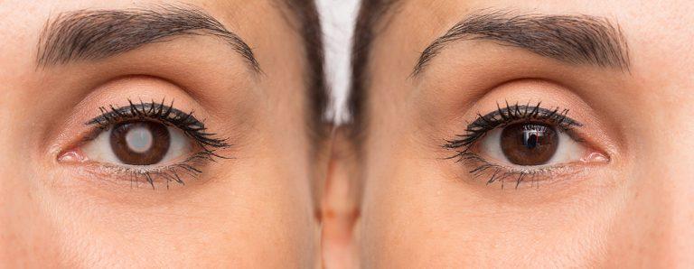 Common Vitamins For Eye Health Macular Degeneration