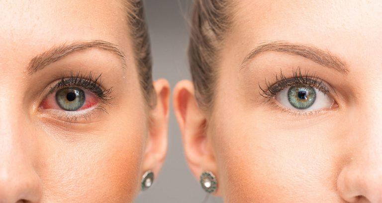 Best Dry Eye Vitamins