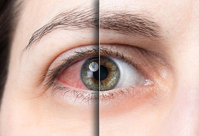 dry eyes vitamins