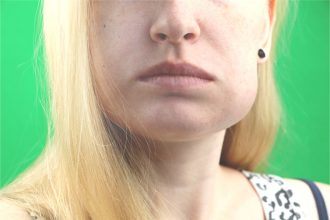 swollen face can lead to blurred vision with headaches