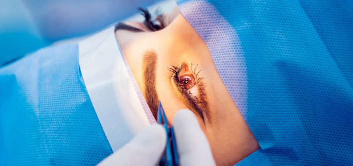 How Much Does Laser Eye Surgery Cost