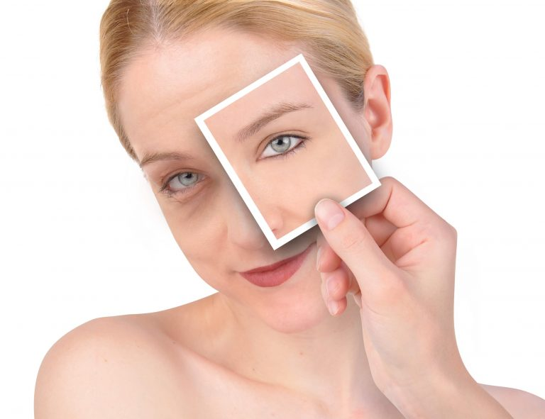 Everything to know about cosmetic eye surgery