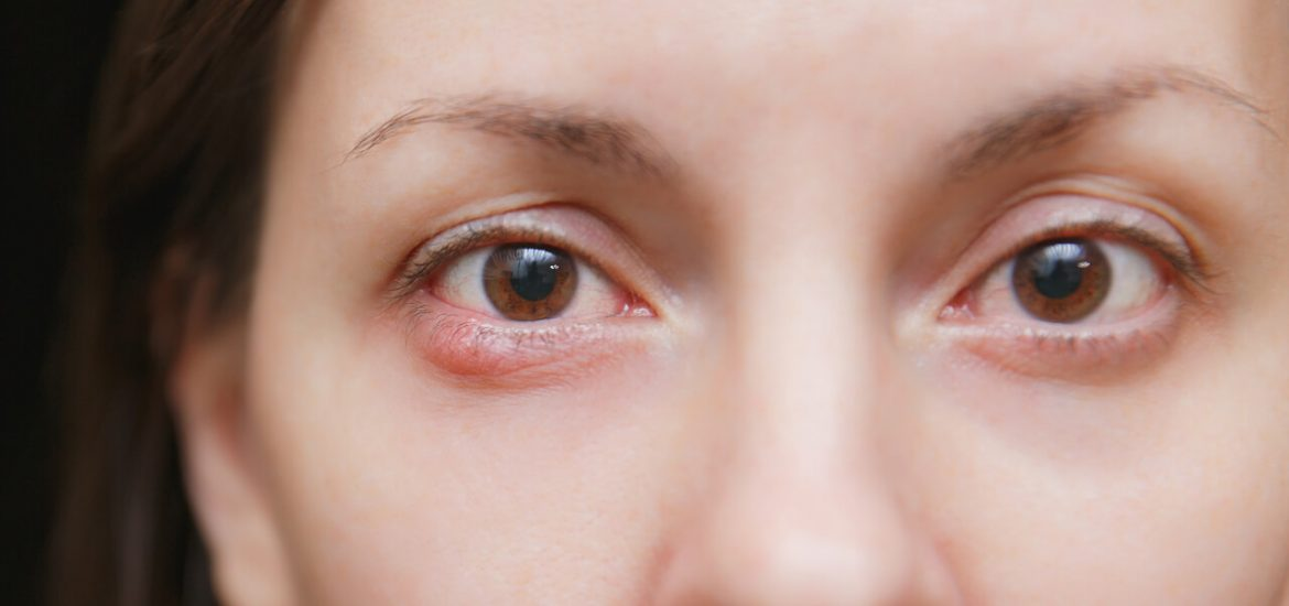 Chalazion Treatment Home Remedy