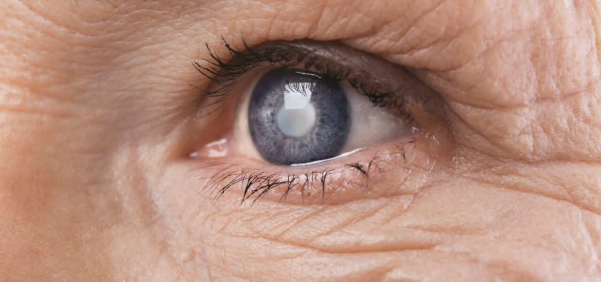 blurred vision after cataract surgery