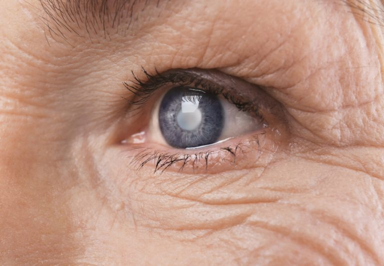 How Normal Is The Blurred Vision After Cataract Surgery