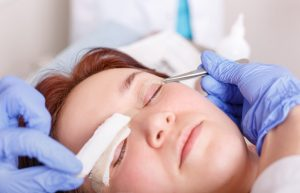 blepharoplasty complications