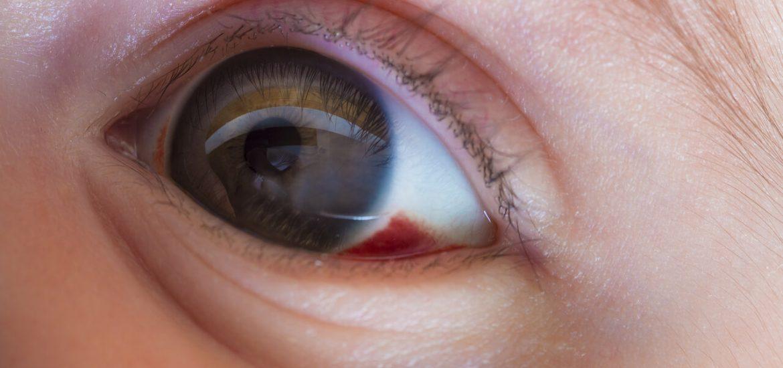 congenital stationary night blindness