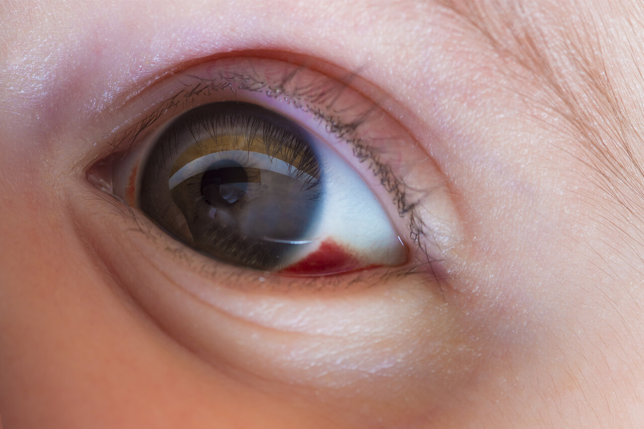 congenital stationary night blindness