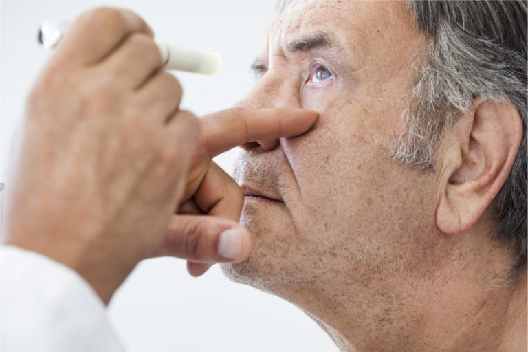 Neuro Eye Problems: Causes and Symptoms