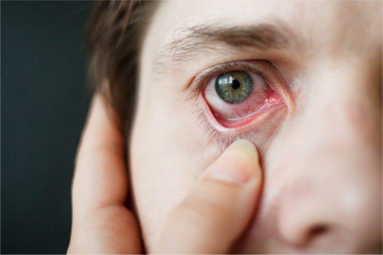 Eye relaxation exercises for eye strain